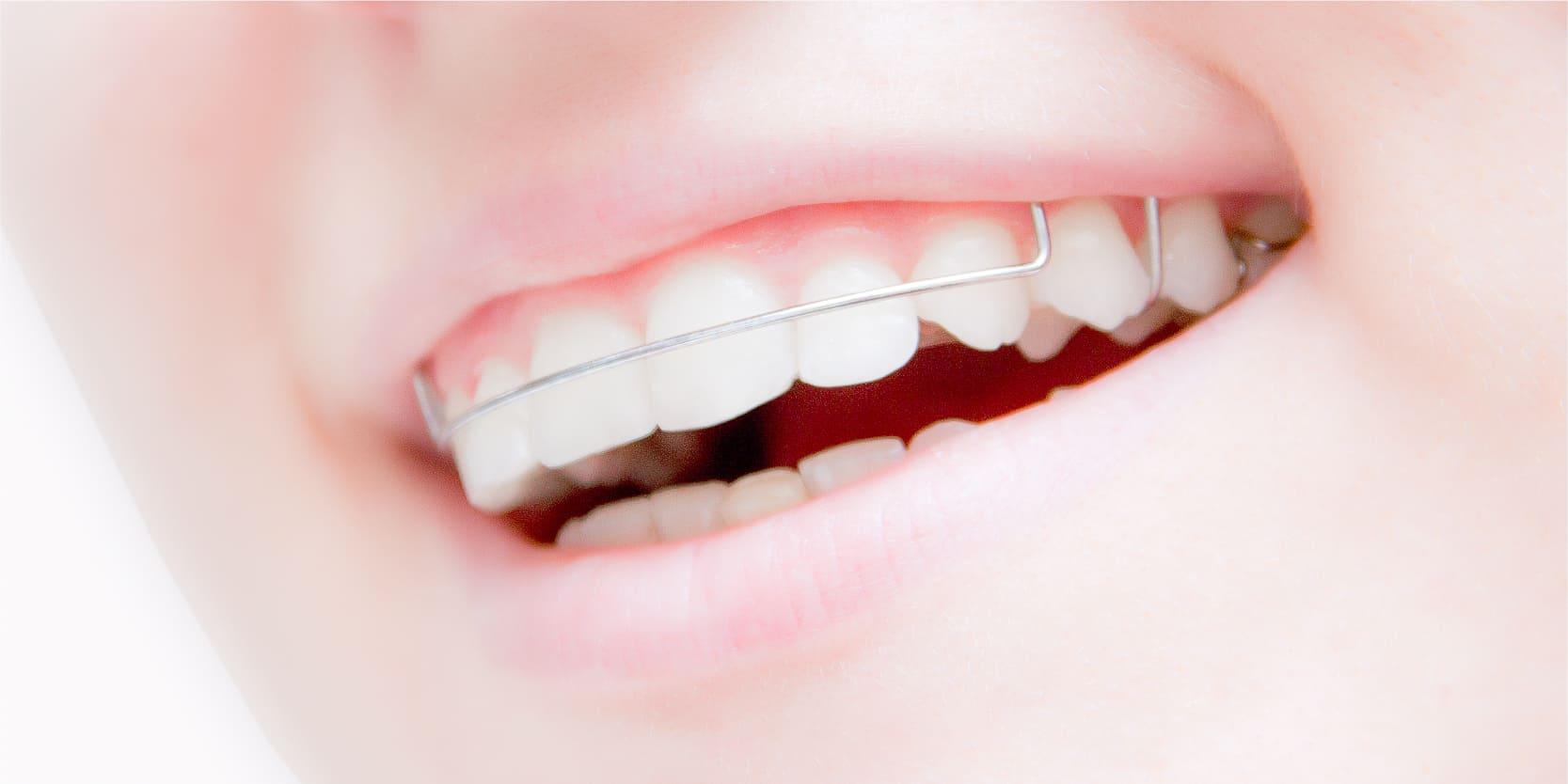 患者様にマッチした方法できれいな歯並びを